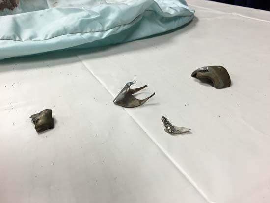 Takata airbag recall metal fragments